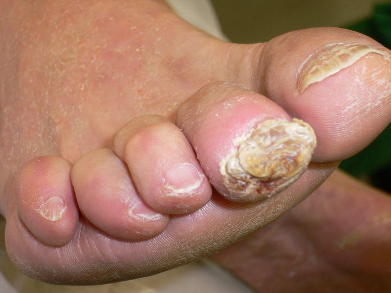 Patienteninformationen zum Diabetischen Fußsyndrom - my medibook
