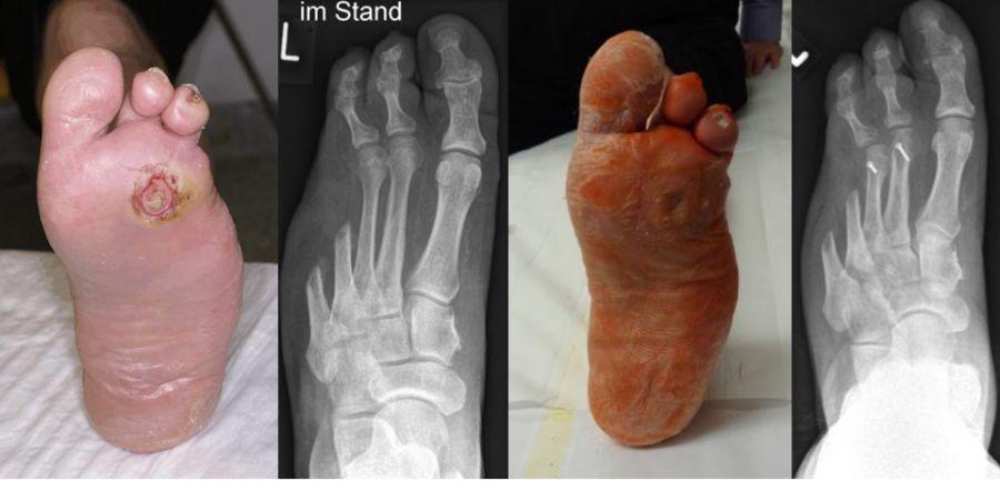 Diabetischer Fuß: Symptome und Behandlung
