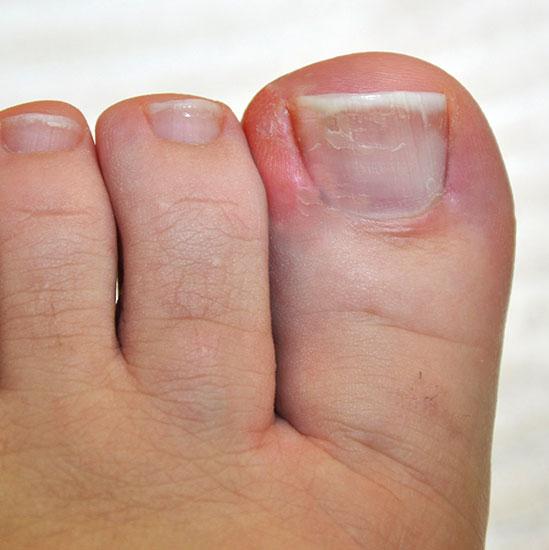 Eingerollter Oder Eingewachsener Nagel - My Medibook